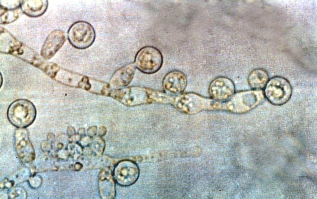 Is Intestinal Candida Overgrowth a Real Condition?
