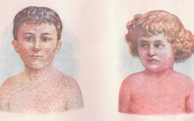 15 Facts about Measles the Mainstream Media Won't Tell You