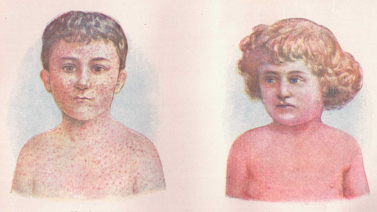 Illustrations of children with measles and scarlet fever (Sue Clark/CC BY 2.0)